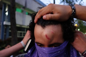 At least one student was hit in the forehead by a teargas canister